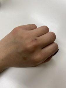 「ヤクジョ水」をおよそ3週間使用した手