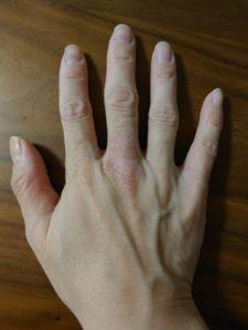 EORA(エオラ)ハンドパック 使用前の手